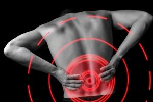 Lower Back MRI