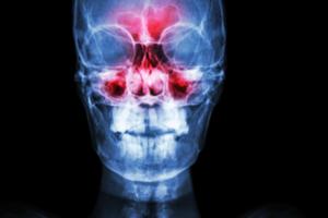 Paranasal sinuses x ray