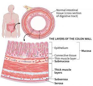 Let S Talk About Colon Cancer Labfinder
